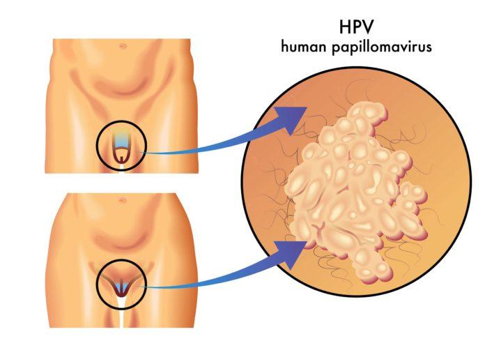 Vacuna para el VPH