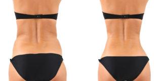 Esculpe tu cuerpo con la lipoescultura