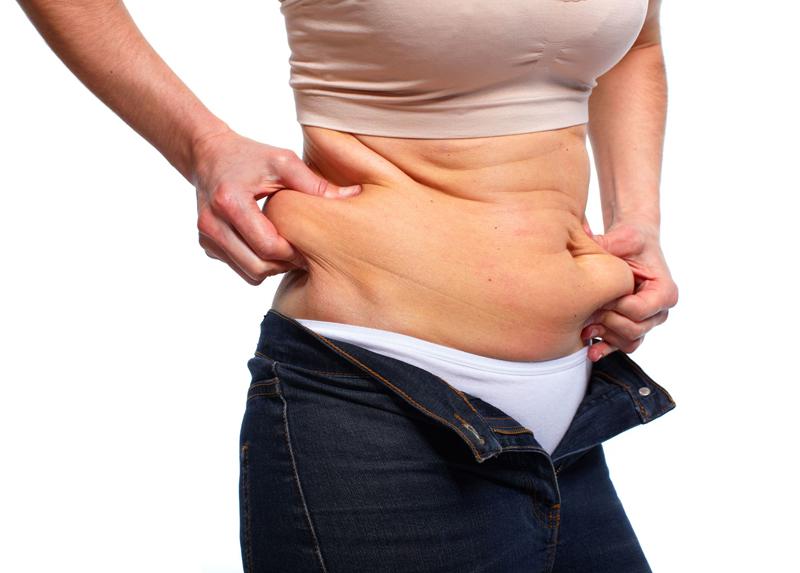 ¿Qué es la Lipectomía o Lipoabdominoplastia?