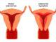 Histerectomía