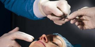 ¿Qué es una Rinoplastia o cirugía de nariz?